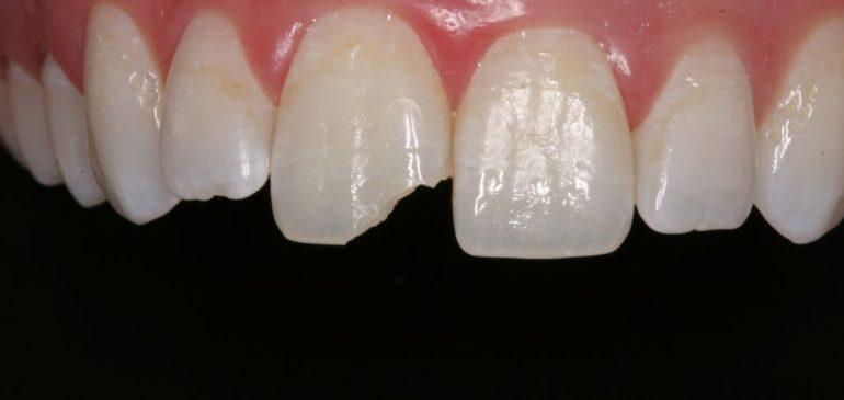 Ce facem in cazul unui traumatism dentar?