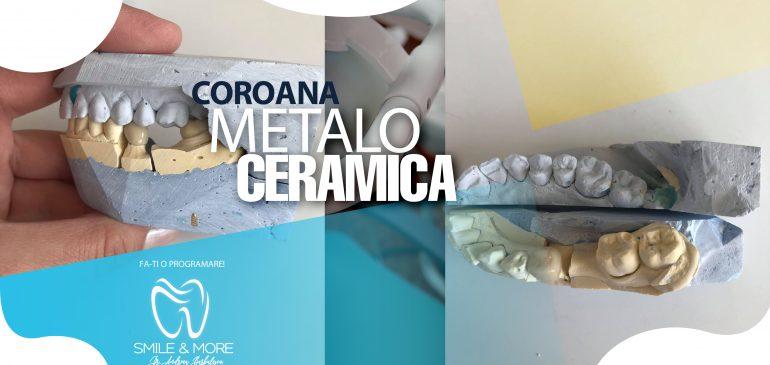 IMPLANT DENTAR vs COROANA DENTARA/PUNTE CLASICA